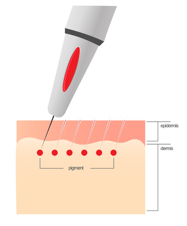 The scheme of the procedure of permanent makeup. Ilustração