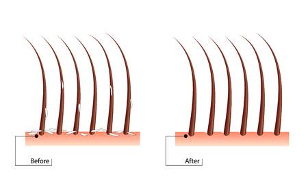 フケ髪の問題。プロシージャの前後に。あざ治療の結果  イラスト・ベクター素材