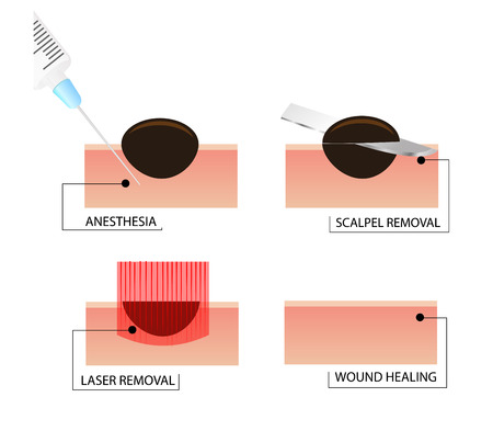 Laser removal of moles. A phased scheme of the procedure.