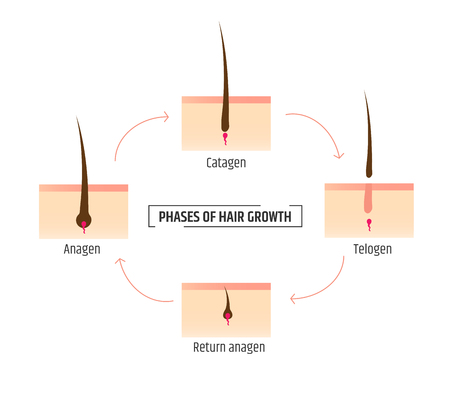 hair growth phases. Infographics trichology and dermatology. Laser Hair Removal Illustration