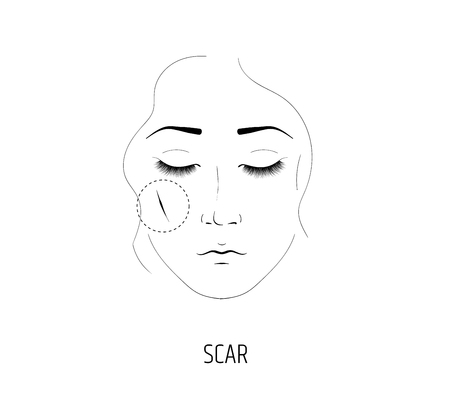 Cosmetology laser procedure for the removal of scars. The face of a girl Illustration