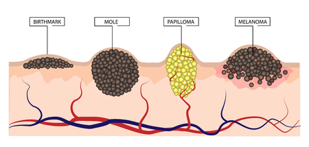 The difference between a birthmark, mole, papilloma and melanoma. Infographics. Illustration