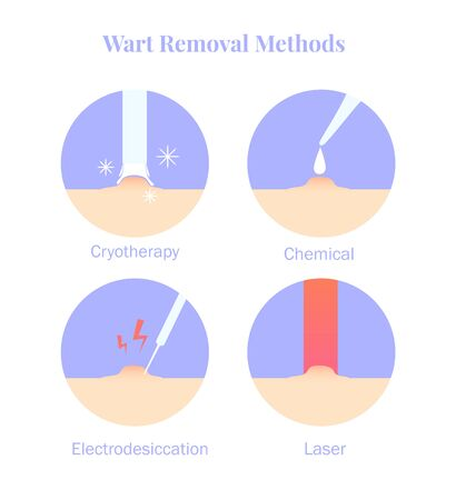 Infographics wart removal methods. Cryotherapy, Electrodesiccation, chemical and laser removal. Vector illustration Çizim