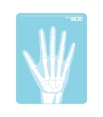 Radiogram of hand. X-ray or roentgenogram. Vector illustration of radiograph