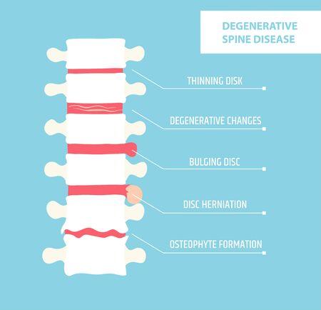 Degenerative disc disease. Spinal arthritis. Vertebral hernia. Infographic vector illustration