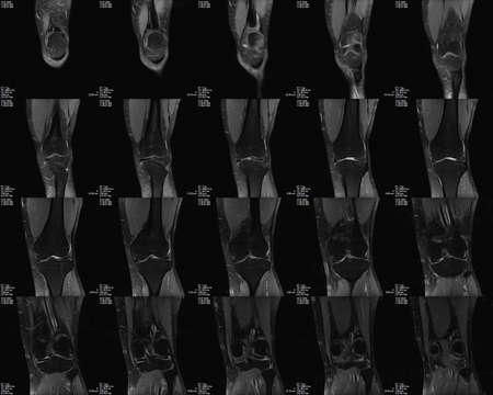 Coronal Magnetic Resonance tomography (MRT) image of knee
