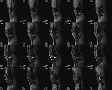 Sagittal Magnetic Resonance tomography (MRT) image of knee 免版税图像