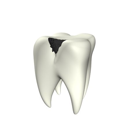 3d illustration looks caries tooth on the white background. Stock Illustration - 5791759