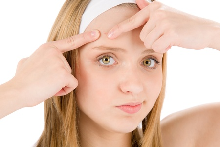 Acne facial care teenager woman squeezing pimple on white Stock Photo - 9553995