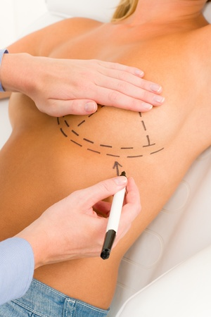 breasts pretty: Plastic surgery doctor draw line on patient breast augmentation implant
