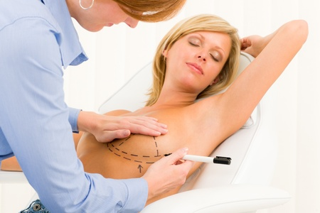 Plastic surgery female doctor draw line patient breast augmentation implant Stock Photo - 10135001