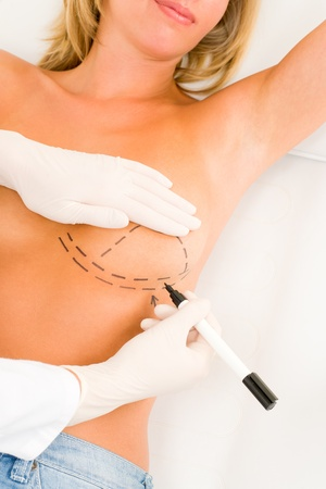 Plastic surgery doctor draw line on patient breast augmentation implant Stock Photo - 10180236