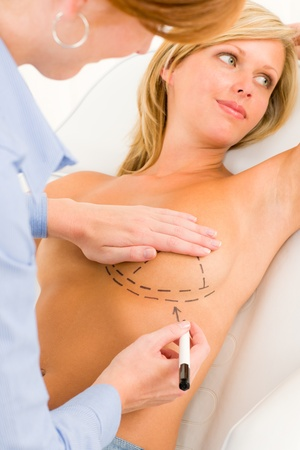 Plastic surgery female doctor draw line patient breast augmentation implant Stock Photo - 10180253