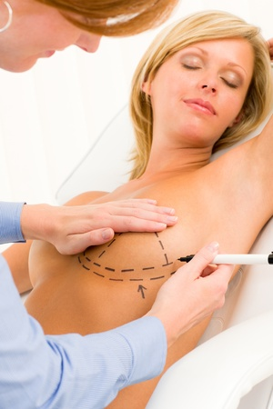 breast examination: Plastic surgery female doctor draw line patient breast augmentation implant Stock Photo