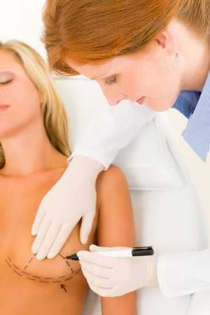 Plastic surgery female doctor draw line patient breast augmentation implant Stock Photo - 10223171
