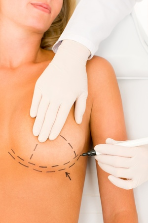 senos: M�dico de cirug�a pl�stica dibujar la l�nea en implante de aumento de pecho paciente