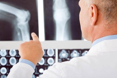 adult bones: Professional male senior doctor pointing at set of x-rays