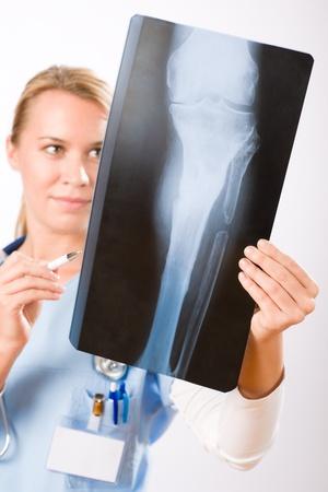 Young female doctor examining x-ray isolated on white background photo