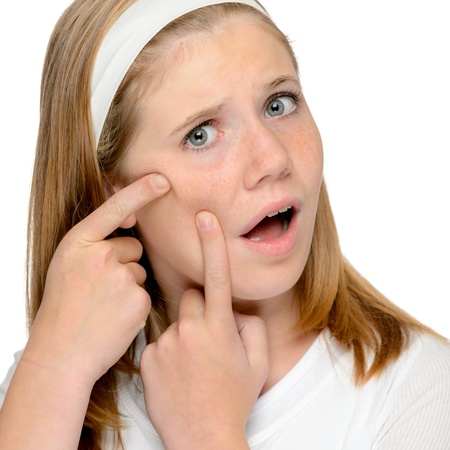 Teen girl looking skin spotted pimple squeezing face problems Stock Photo - 18969707