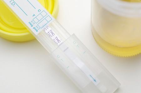 マリファナ薬物検査、正 写真素材