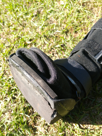 A black Orthopedic or medical boot, cast or footwear, isolated on bright green summer grass, white paint splatter on lower strap, closeup of the toes.