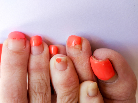 Badly groomed ugly woman's feet with long salmon colored toenails. Need Pedicure. Overdue Pedicure. Toes, Feet overlapping each other one on top of the other.