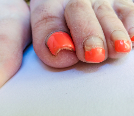 Badly groomed ugly woman's feet with long salmon colored toenails. Need Pedicure. Overdue Pedicure. Angled perspective. Фото со стока