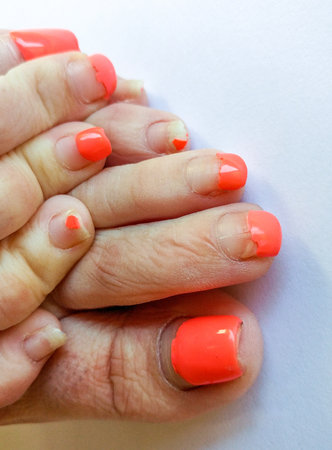Badly groomed ugly woman's feet with long salmon colored toenails. Need Pedicure. Overdue Pedicure. Toes, Feet overlapping each other one on top of the other. Stock Photo
