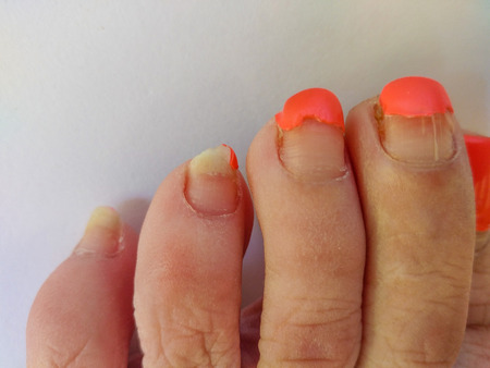 Badly groomed ugly woman's feet with long salmon colored toenails. Need Pedicure. Overdue Pedicure. Room for text. Фото со стока