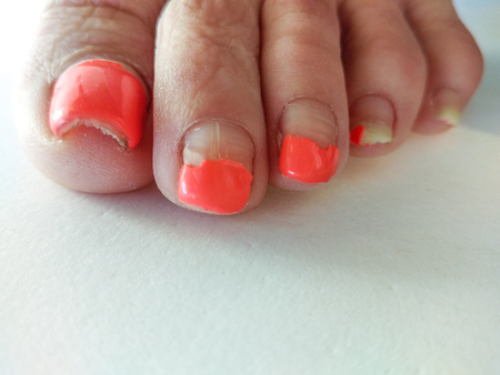 Badly groomed ugly woman's feet with long salmon colored toenails. Need Pedicure. Overdue Pedicure. Left foot, left toes. Фото со стока
