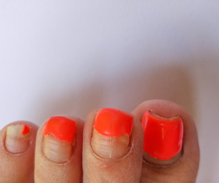 Badly groomed ugly woman's feet with long salmon colored toenails. Need Pedicure. Overdue Pedicure. Room for text. Stock Photo