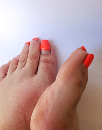 Badly groomed ugly woman's feet with long salmon colored toenails. Need Pedicure. Overdue Pedicure. Right foot turned upward on side, highlight view of bunion.