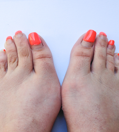 Badly groomed ugly woman's feet with long salmon colored toenails. Need Pedicure. Overdue Pedicure. Isolated on white background. View of most of two feet looking down, like being placed on a weight scale. Clear view of bunion effect on both feet.