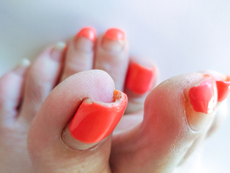 Badly groomed ugly woman's feet with long salmon colored toenails. Need Pedicure. Overdue Pedicure. Closeup view of right foot toes, left foot blurred in the background, selective focus.