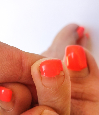 Badly groomed ugly woman's feet with long salmon colored toenails. Need Pedicure. Overdue Pedicure. Hands grabbing the middle toe, focus on the middle toe.