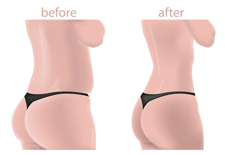 weight loss woman: Woman body before and after Illustration