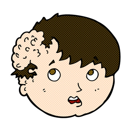tumor growth: retro comic book style cartoon boy with ugly growth on head Illustration