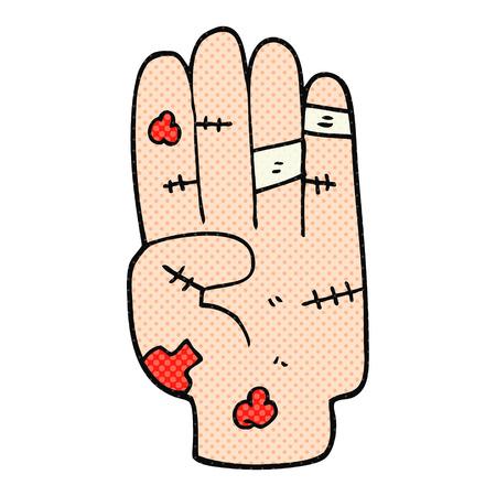 bruise: freehand drawn cartoon injured hand
