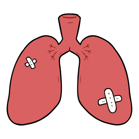cartoon repaired lungs Vector illustration.