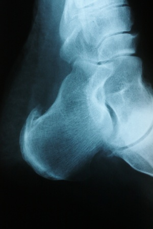 Digital image of an x-ray of a heel spur