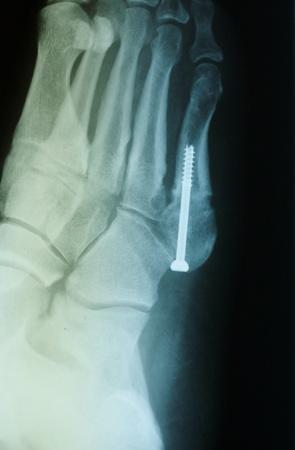 Jones Fracture 2