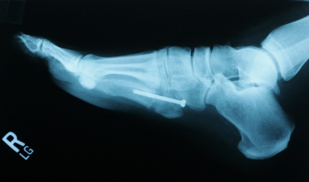 Jones Fracture Stock Photo - 9137438