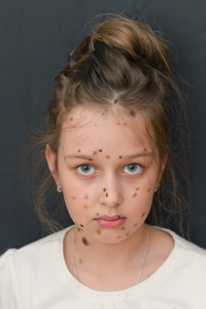 varicella: girl with chickenpox  varicella zoster virus , with a sadness