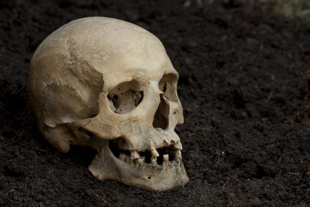 configured: Human skull configured as crime scene, focused on teeth Stock Photo