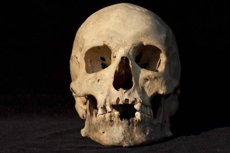 Real human skull on black backround Stock Photo - 8875460