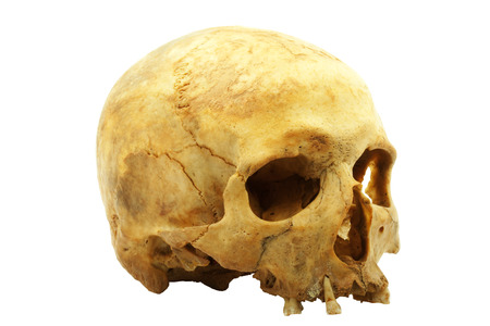 Real human skull isolated on white background, yellow lipids are absorbed into bone and improved yellow colour, narrow focus photo