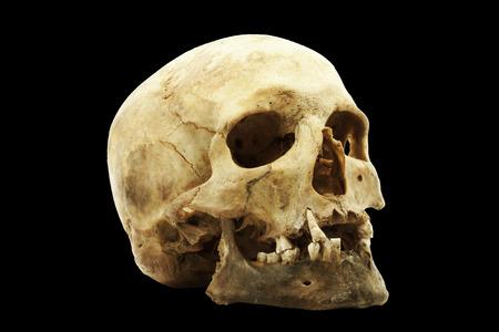 human jaw bone: Genuine human skull isolated on black Stock Photo
