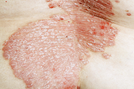 autoimmune: Psoriasis vulgaris is an autoimmune disease that affects the skin