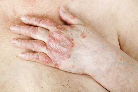 psoriasis: Psoriasis vulgaris is an autoimmune disease that affects the skin