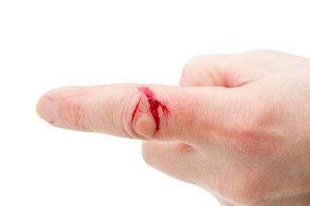 Muskulatur mit Blut an männlichen Finger gewickelt Standard-Bild - 24339922